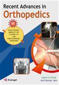 Recent Advances In Orthopedics